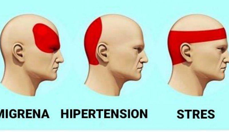 Si ta largoni dhimbjen e kokës në 5 minuta pa përdorur ilaçe