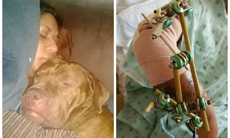 Jetonte me qen ne shtepi prej 9 vitesh, ai i kafshoi krahun deri sa ia këputi